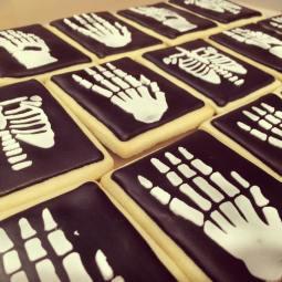 Skeleton/Xray